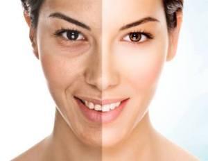 wrinklesbeforeafter